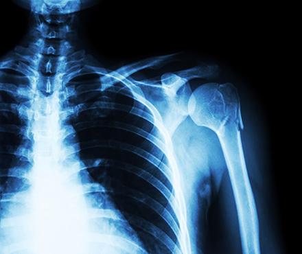 xray of a human shoulder